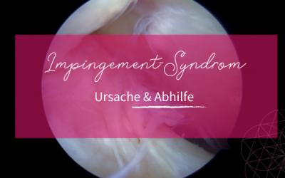 Was ist das Impingement-Syndrom und wie wirst du es wieder los?
